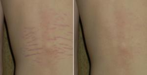 Οι ραγάδες είναι γραμμές στο δέρμα που μπορούν να εμφανιστούν συνήθως στην εγκυμοσύνη, στην εφηβεία αλλά και όταν χάνουμε ή παίρνουμε απότομα κιλά.