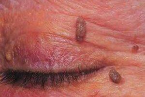 Τα θηλώματα του δέρματος είναι δερματικοί όγκοι μεγέθους 1-3 χιλιοστών, στο χρώμα του δέρματος ή λίγο πιο σκουρόχρωμοι. Εμφανίζονται κυρίως στο λαιμό, στις μασχάλες, στη βουβωνική χώρα και στους μαστούς. Οφείλονται συνήθως στον ιό HPV.